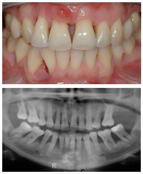 Bone Loss in Teeth   Advanced Dentistry