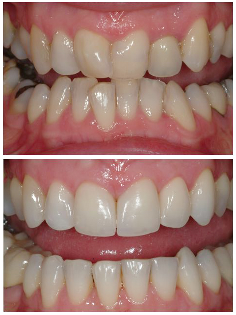 Crooked teeth - before and after images