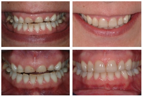 Worn teeth - before and after dental treatment for bruxism