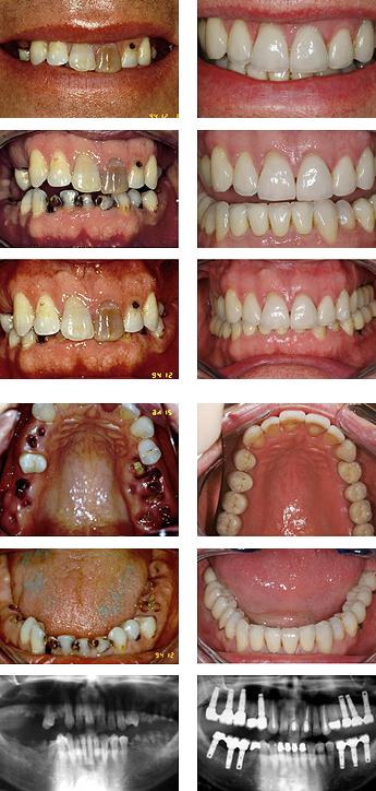 Before and after images of decayed teeth
