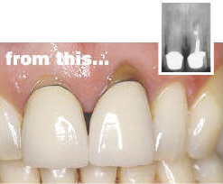 Dental implants - before procedure