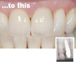 Dental implants - after procedure
