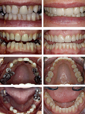 Tooth coloured fillings / bondings before and after