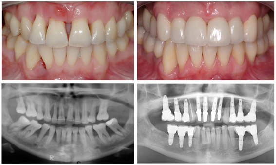 Advanced periodontal disease and severe bone loss – before and after