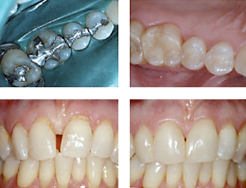 Before and after treatment with dental composite bonding aka white fillings