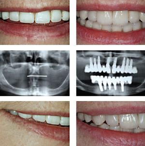 Before shots with complete dentures, then after with implant bridges