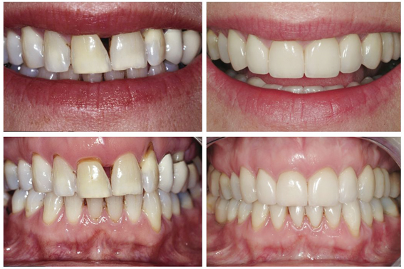Veneers, Crowns & Root Coverage