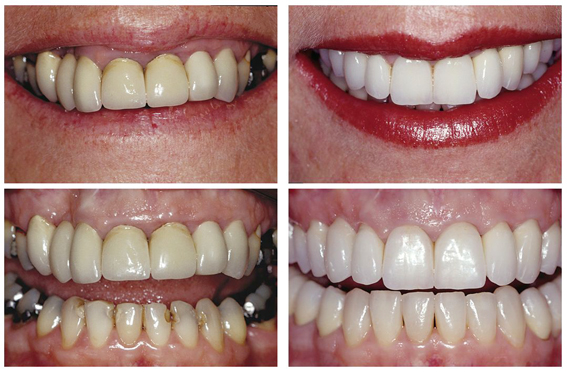 Crowns, Veneers & Gum Reshaping