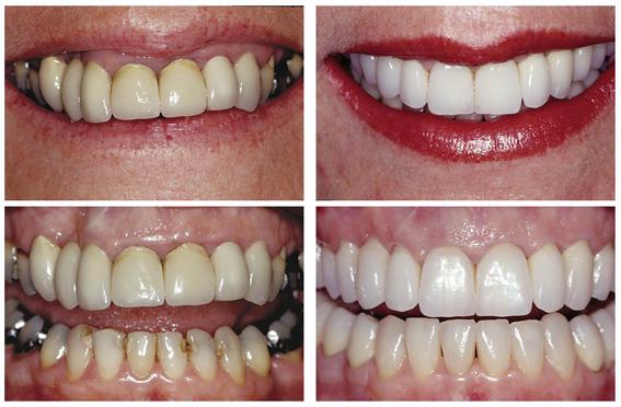 Crowns, Veneers & Gum Reshaping