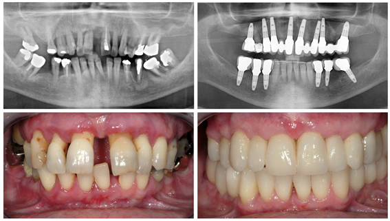 Periodontal Disease & Dental Implants