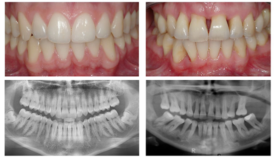 A comparison between healthy and periodontal disease affected teeth
