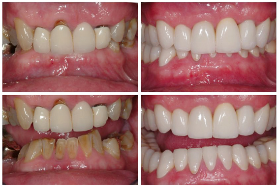Restorative Treatment Full Mouth, orthodontics, dental implants & crowns