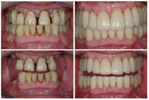 Full mouth rehabilitation with dental implants, crowns and bridges