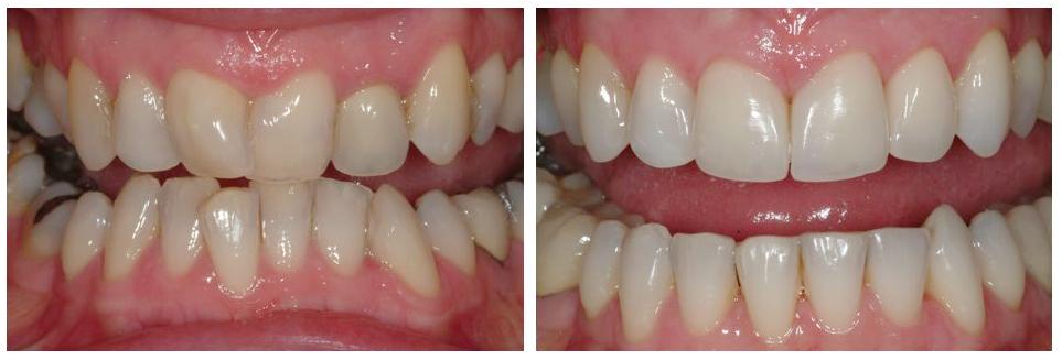Orthodontics, general restorative dentistry and veneers