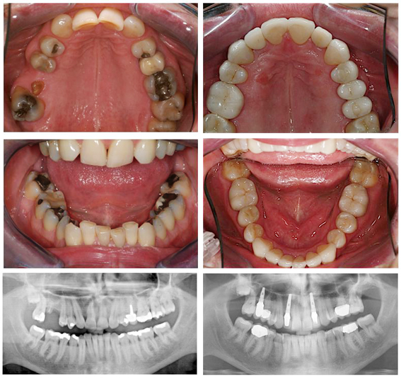 Orthodontics, tooth-coloured fillings, veneers, crowns & dental implants