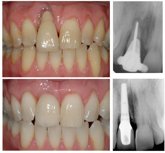 Single tooth dental implant crown with rebuilding of the gum and bone