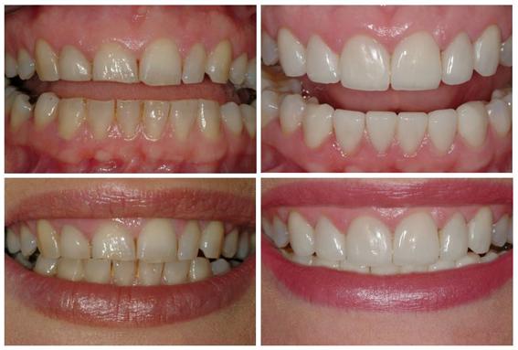Gum Reshaping & Porcelain Veneers