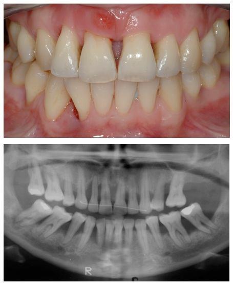 Bone loss in teeth