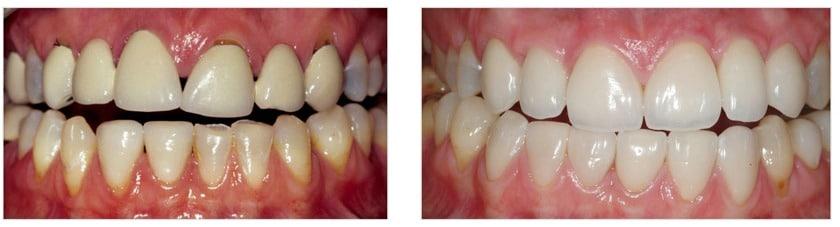 Dental implants, crowns and veneers