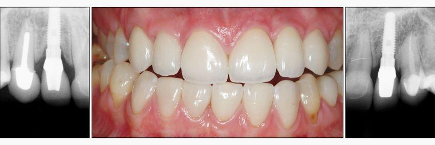 Dental-Implants-crowns-veneers2