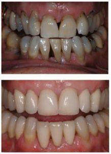 Discoloured / yellow teeth