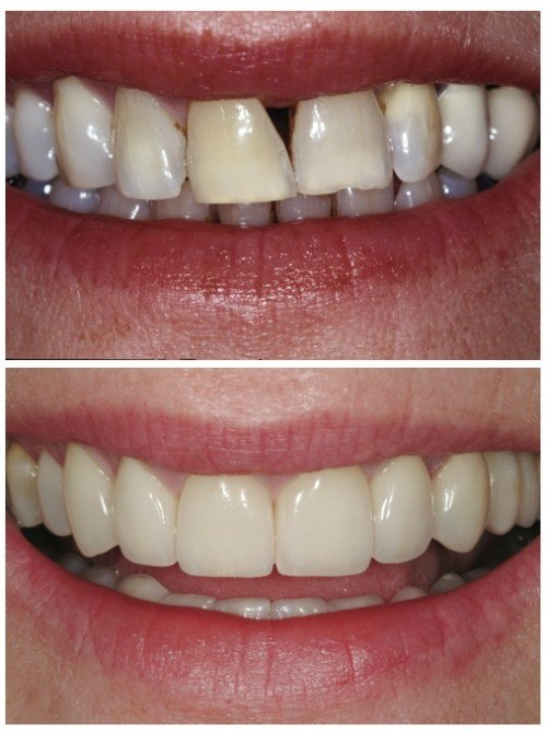 Gap in teeth - before and after