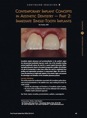 Immediate Single Tooth Implants