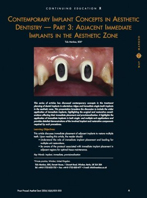 Adjacent Immediate Implants in the Aesthetic Zone