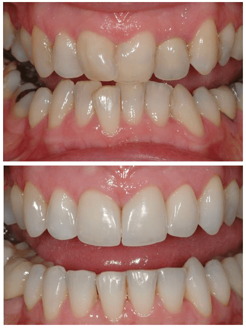 Straightening crooked teeth