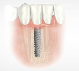 Single-implant-graphic