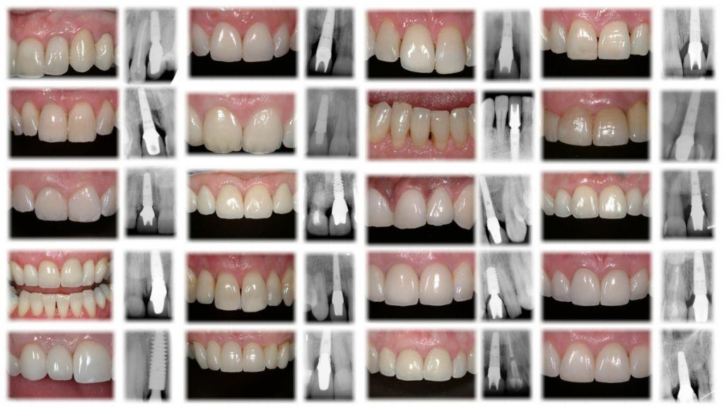 Single-tooth-implants1