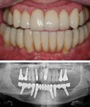 Dental implants with x-ray