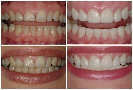 Aesthetic dentistry - before and after