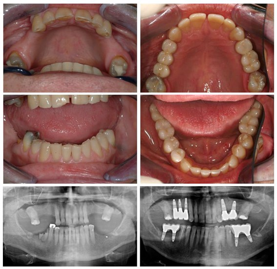 Restorative Dentistry - before and after with x-ray