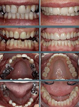 Teeth-feedback1