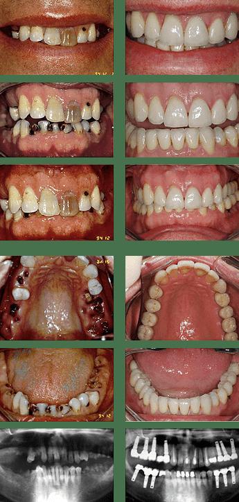 پوسیدگی دندان Rotten Teeth