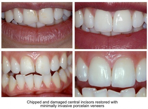 Chipped teeth - damaged central incisor repairs