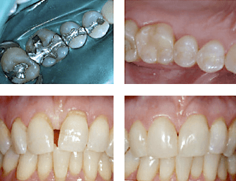 Before photos and after at a 8 year follow up (white fillings)