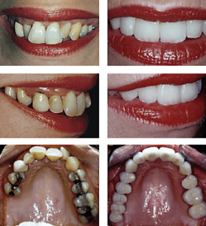 Periodontic treatment, orthodontics, dental implants, crowns and bridges are all utilised to produce a dazzling smile for Julie
