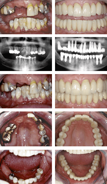 A combined implant and tooth supported full mouth rehabilitation