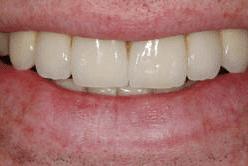 Dental implant example