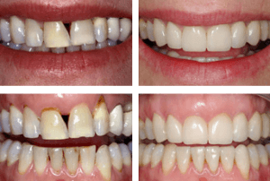 Aesthetic restorations - crowns and veneers before and after