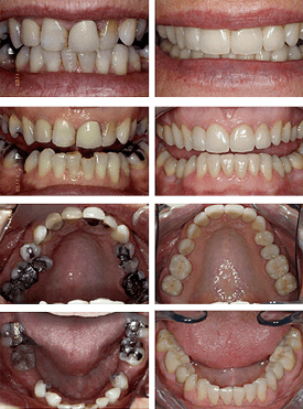 Before and after change from amalgam to white fillings as part of a restorative dentistry plan