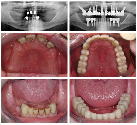 Missing teeth, uncomfortable dentures, diseased and failing teeth (including dental x-ray before and after)