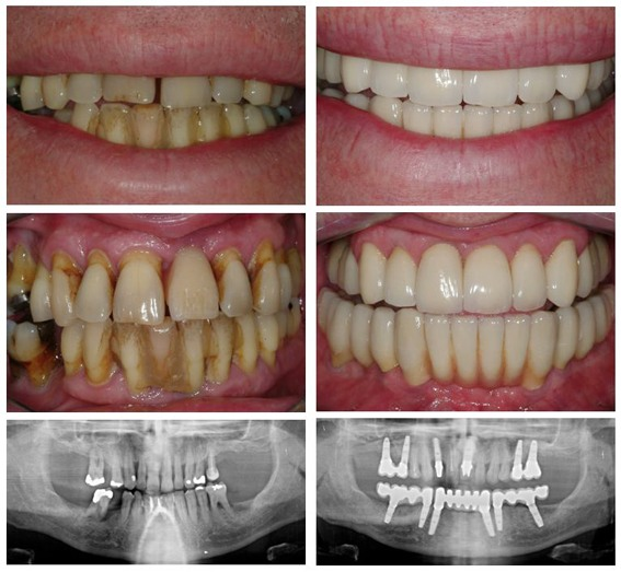 Diseased and failing teeth - dental implants before and after