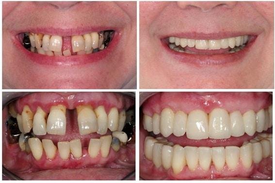 Severe periodontal disease, bone loss and gum recession